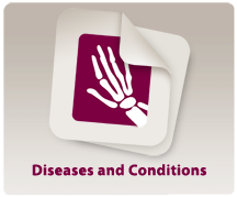 Diseases_Conditions